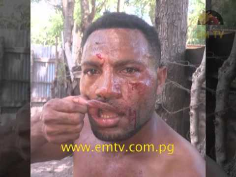 PNG's kickboxing world titleholder Rickson 'Powerhouse' Yamo attacked and beaten by group of men