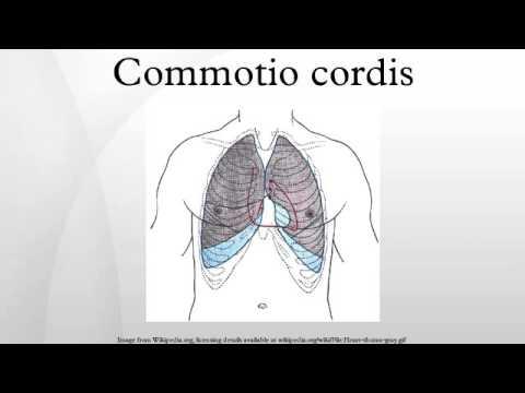 Commotio cordis - YouTube