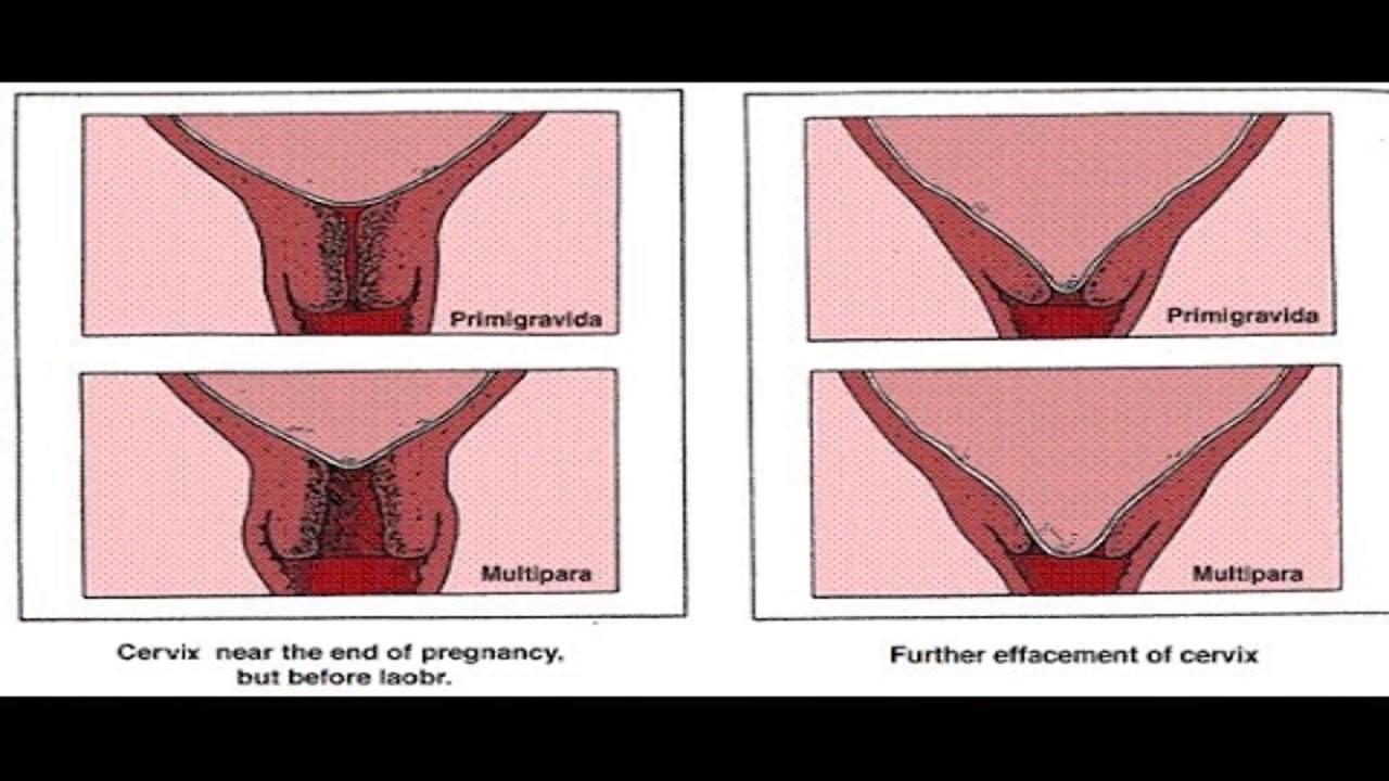 معلومات ممتعة علامات انفتاح الرحم في الشهر التاسع Youtube