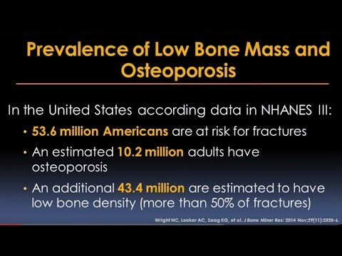 Preventing, Diagnosing and Treating Osteoporosis Video – Brigham and Women's Hospital
