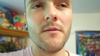 Week 23 - Epic Minoxidil Journey with Photos