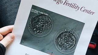 TRANSFER DAY • 2ND IVF FET