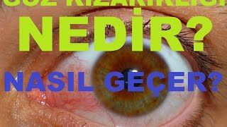 What is eye redness, and how get?