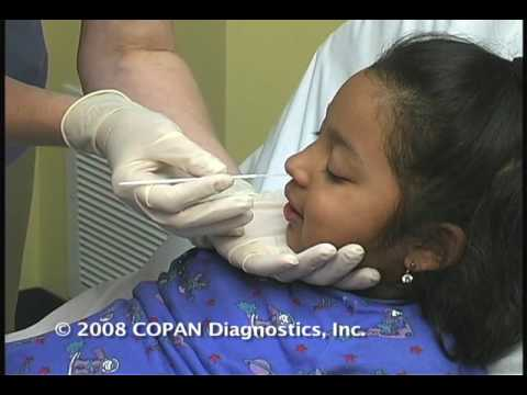 How to Collect Nasopharyngeal Samples for Flu Testing Using COPAN Flocked Swabs