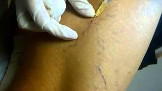 Szkleroterápia(, 2015-02-28T18:55:46.000Z)