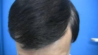 Hair Restoration - 1.800.859.2266