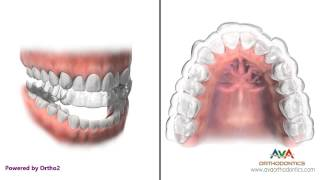 How Invisalign or Clear Aligners work - Orthodontic Treatment