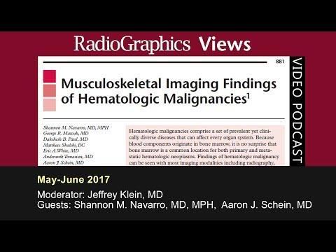 Musculoskeletal Imaging Findings of Hematologic Malignancies thumbnail