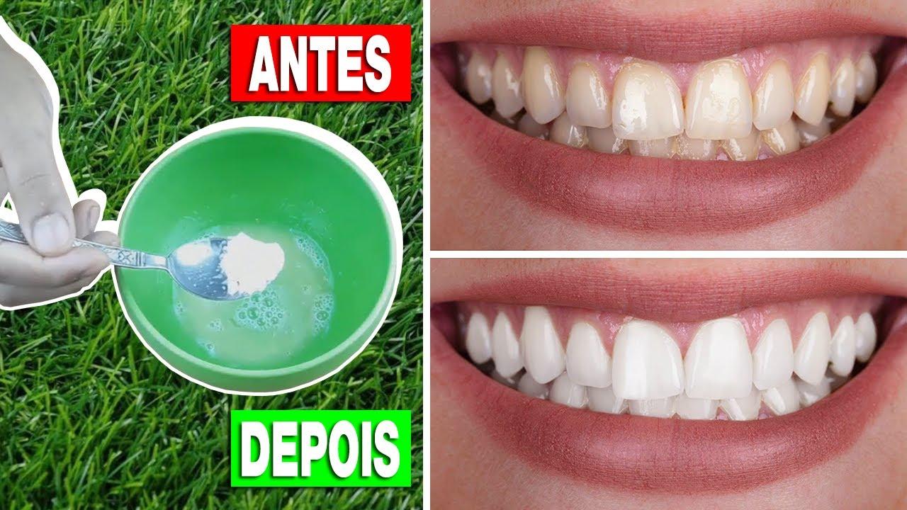 Como Clarear os Dentes em Casa em 3 Minutos - Receita Caseira para Clarear os Dentes