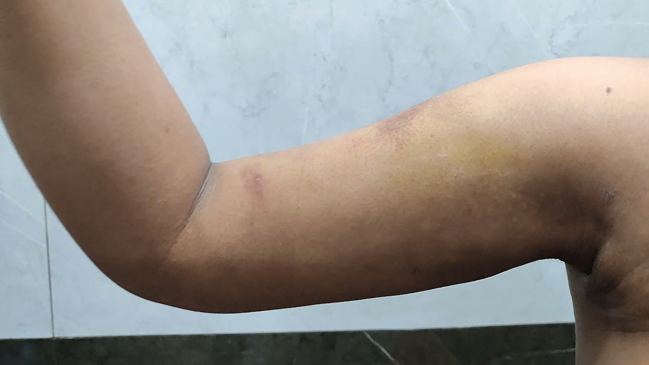 Arm liposuction result after 2 weeks. Patient Review @Dezire Clinic