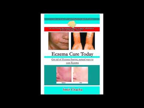 Eczema Homemade Treatments Works Better Than Medicine