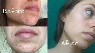 HOW I HEALED MY HORMONAL ACNE | My Acne Story