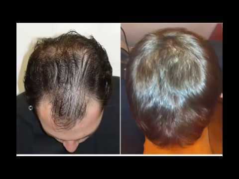 Results of using Minoxidil 5% before and after