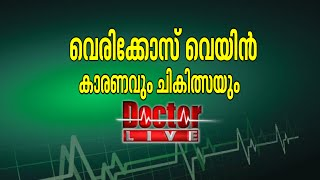Varicose Veins Treatment|Doctor Live 31 March 2016