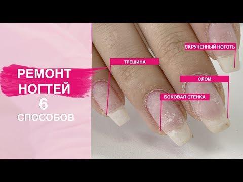 Как сделать ремонт ногтя