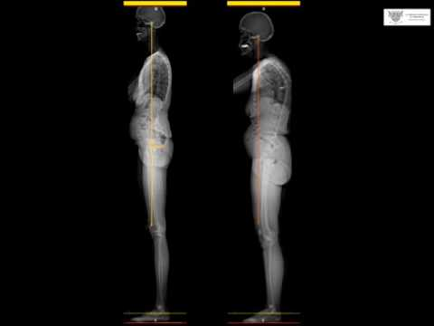 Traitement interventionnel des fractures du rachis ostéoporotique - LAREDO JD
