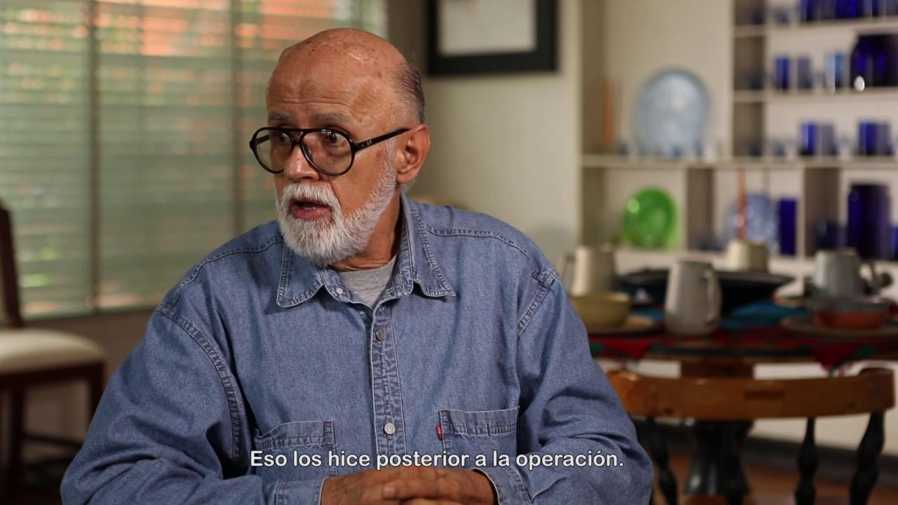 Alberto Diaz: Antes y después de recibir el tratamiento avanzado para el temblor escencial