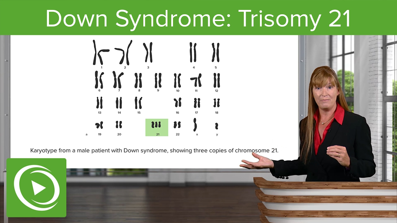 an analysis of down syndrome in human genetic conditions Genetic disorders can be caused by a mutation in one gene (monogenic disorder), by mutations in multiple genes (multifactorial inheritance disorder), by a combination of gene mutations and environmental factors, or by damage to chromosomes (changes in the number or structure of entire chromosomes, the structures that carry genes).
