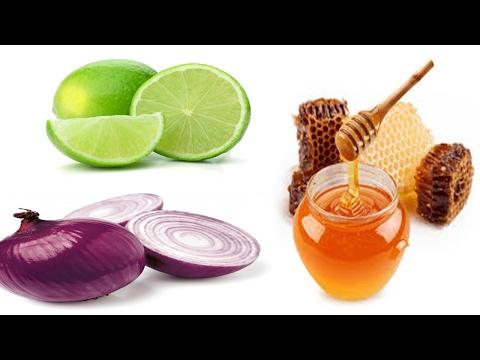 Este Remedio Eliminará La Sinusitis Y Congestión Nasal En Solo 3 Días!!