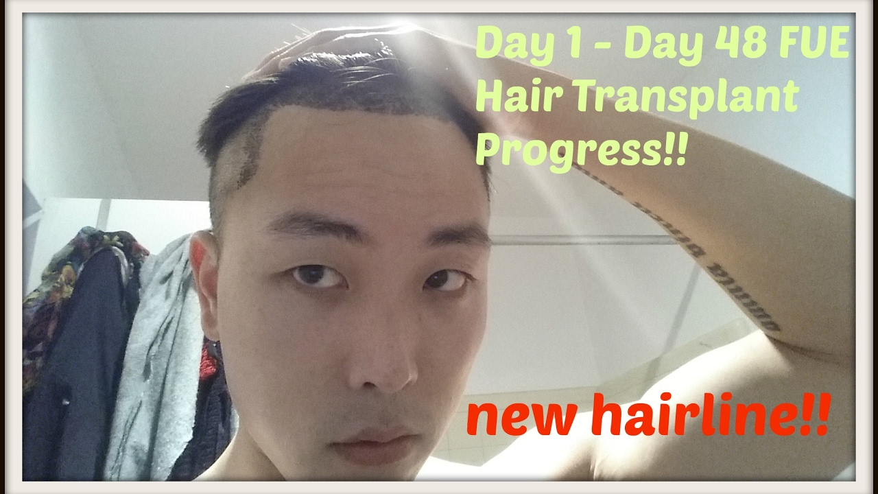 Day 1 to Day 48 FUE Hair Transplant Progress!