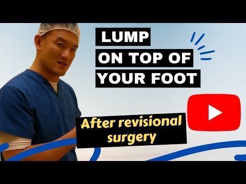 Lump On Top Of Your Foot