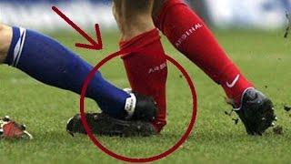 Топ 10 • Страшные травмы на футболе(+18) • HD