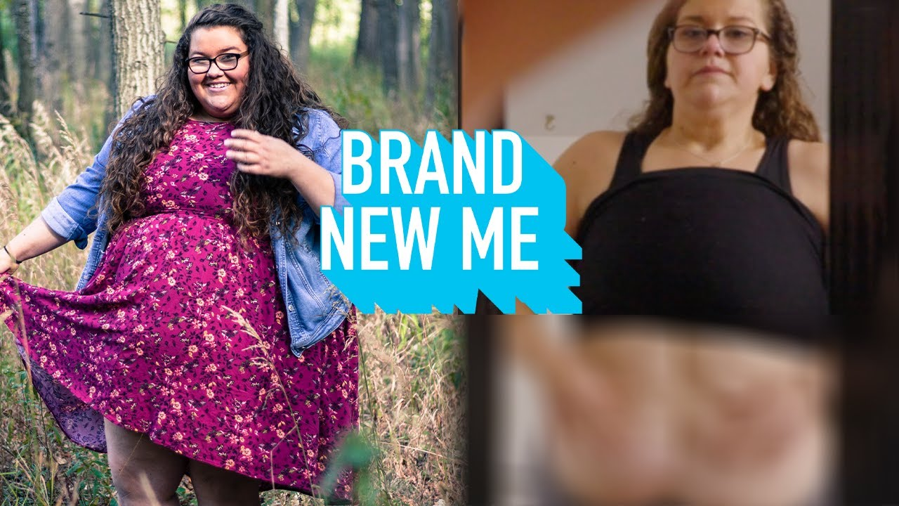 I've Never Revealed My Excess Skin - Until Now | BRAND NEW ME