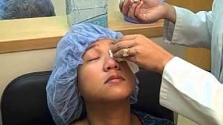 Shaun's Intralase LASIK 20 20 Optometry