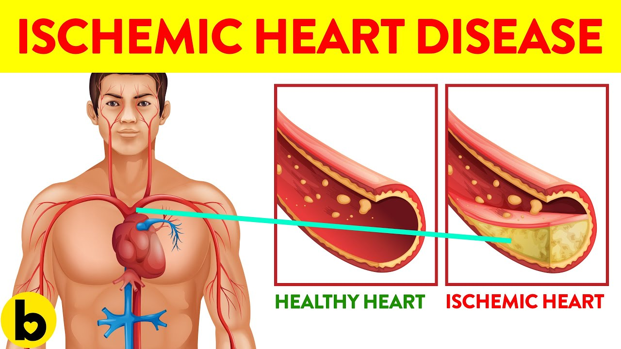 7 Ways You Can Get Ischemic Heart Disease