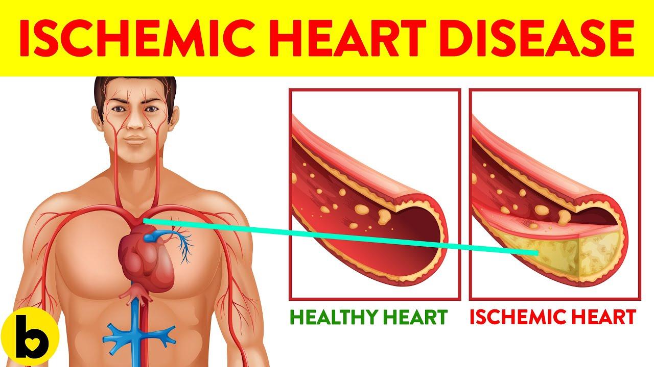 7 Ways You Can Get Ischemic Heart Disease
