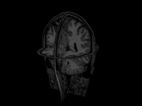 Combining T1 weighted and diffusion MRI