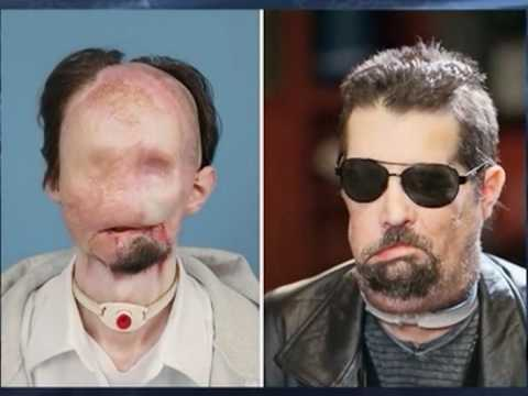 Man Shows Off First Us Full Face Transplant