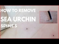 How to Remove Sea Urchin spines on Foot