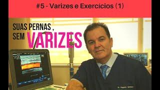 As varizes para melhorar exercícios