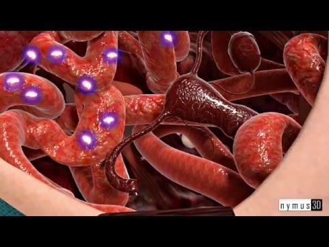 Рак яичников - лечение, симптомы и диагностика