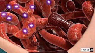 Лечение рака яичников в Израиле