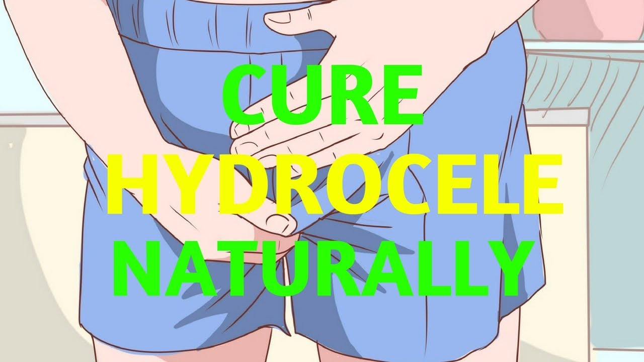 Cure Hydrocele And Varicocele Naturally - YouTube