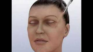 3D Education Face Lift