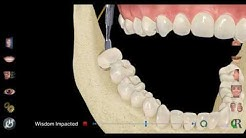 Impacted Wisdom Tooth Extraction with 8118 Dental Professionals in Austin, TX