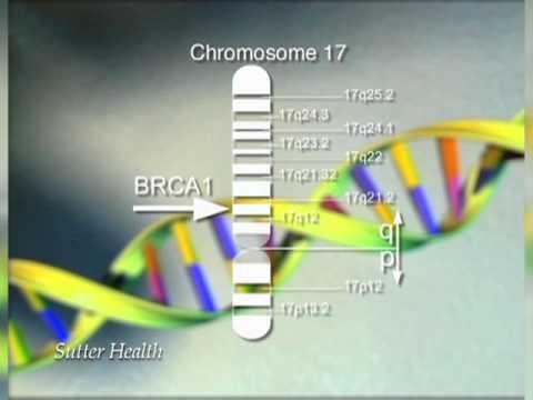 Poliklinika Harni - Nasljedni rak dojke i jajnika - BRCA mutacija