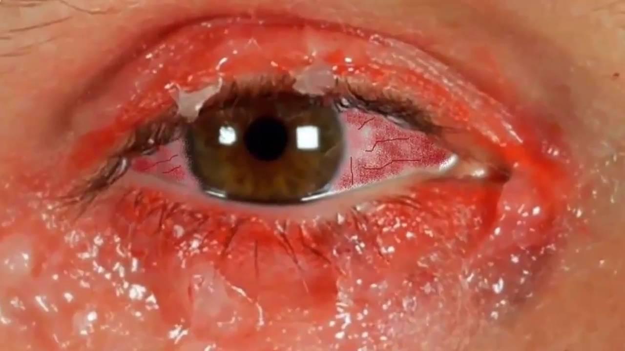 Yeux rouges images signes sympt mes photos images for Interieur yeux rouge