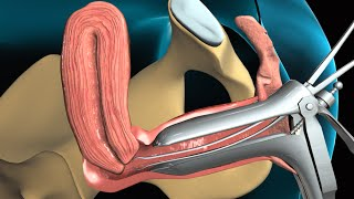 Medical Animation: Endometrial Biopsy