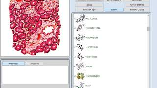 ultramicroscan  software vector Hector Arias whatsapp +56976096433