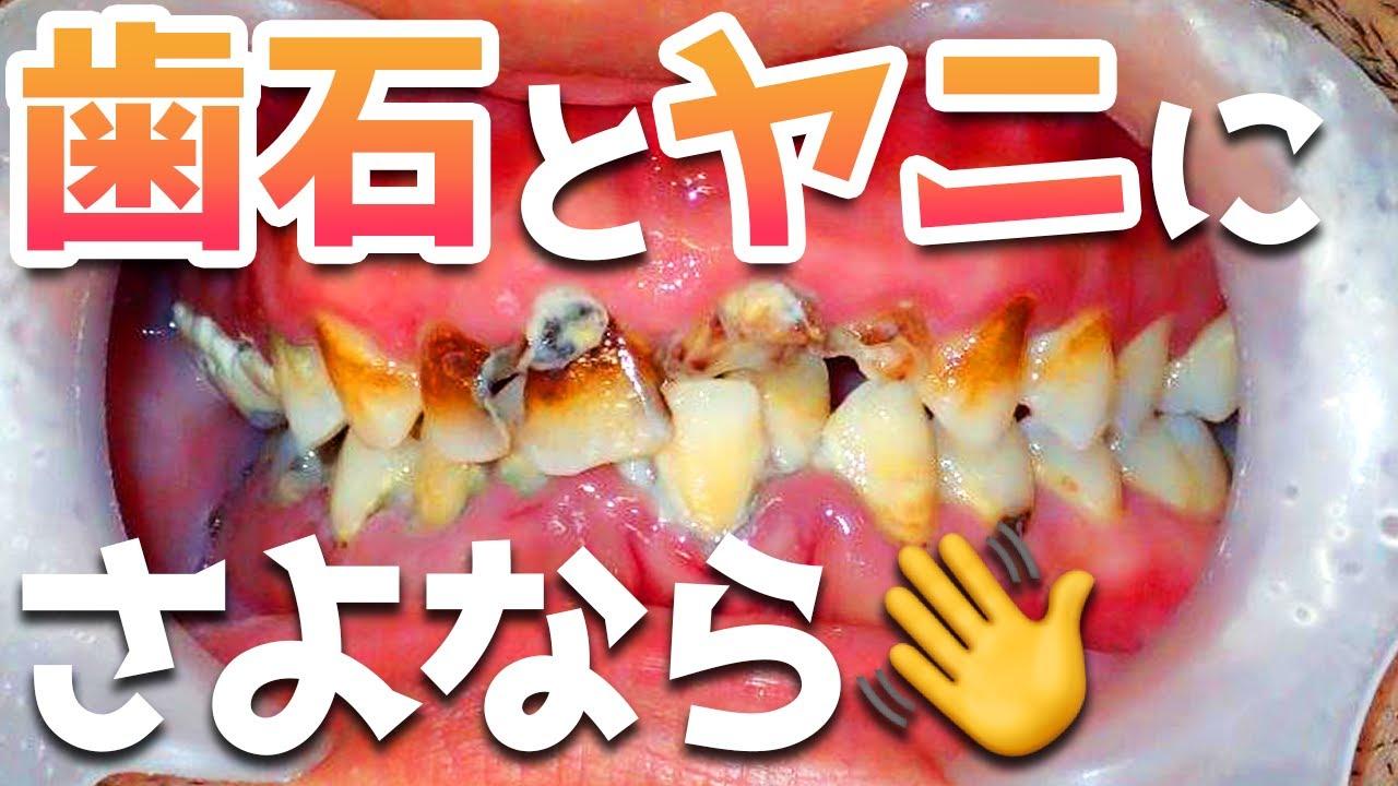 【歯石除去】歯石とヤニを徹底的に綺麗にします👏歯石とヤニにさよなら👋【彻底清洁牙齿结石和焦油】【Thoroughly clean tartar and tar】