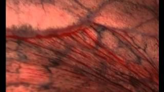 видео Плоскоклеточный рак легкого
