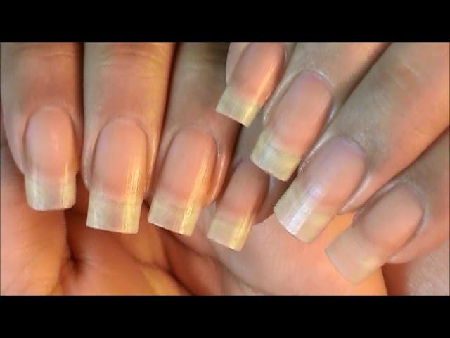 Peeling fingernails, dry fingernails, vitamin deficiency, nails, and ...