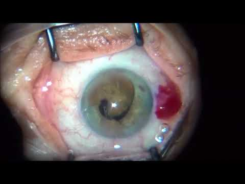 Cataract Surgery - Storm of surprises