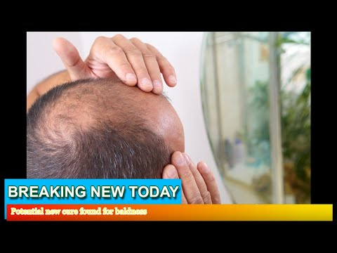 Breaking News - Potential new cure found for baldness
