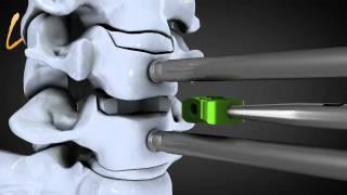 Hernie discale cervicale - Spinal disk herniation - Kisco International
