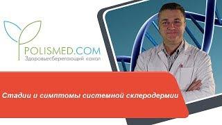 Стадии и симптомы системной склеродермии. Поражения кожи при склеродермии: пятна, зуд